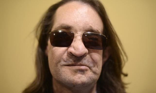 Mężczyzna po przeszczepie twarzy. Niesamowity efekt leczenia. ZDJĘCIA