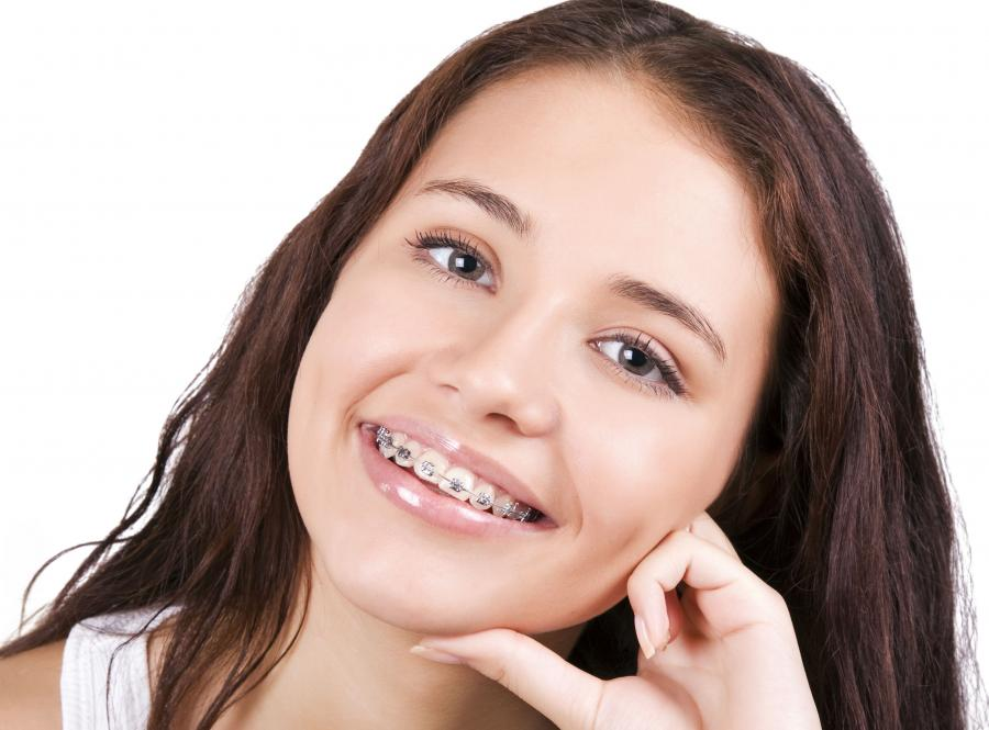 Czy muszę usuwać zdrowe zęby przed założeniem aparatu?