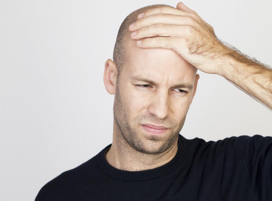 Zanim zdecydujesz się na przeszczep włosów