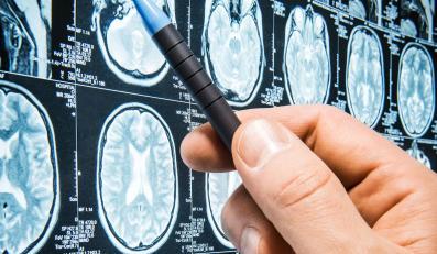 Rezonans magnetyczny mózgu